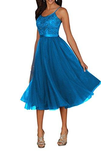 Charmant Damen Kurz Abendkleider Ballkleider mit Spitze Festlich Kleider Mini Promkleider Jugendweihe Kleid